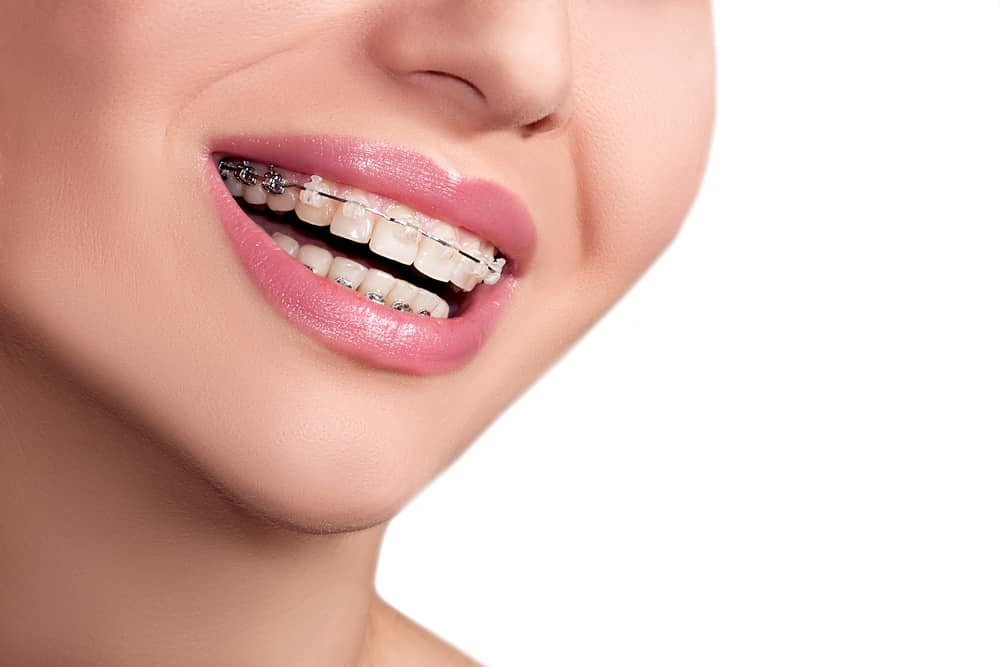 Brace Care Tips to Get The Most From Your Aligners